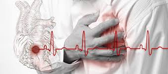 Chest Pain: Symptomatic approach: GP Guideline by Platform