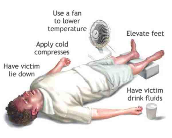 Emergency First Aid for Heatstroke