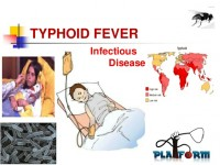 typhoid-fever-ppt-1-638