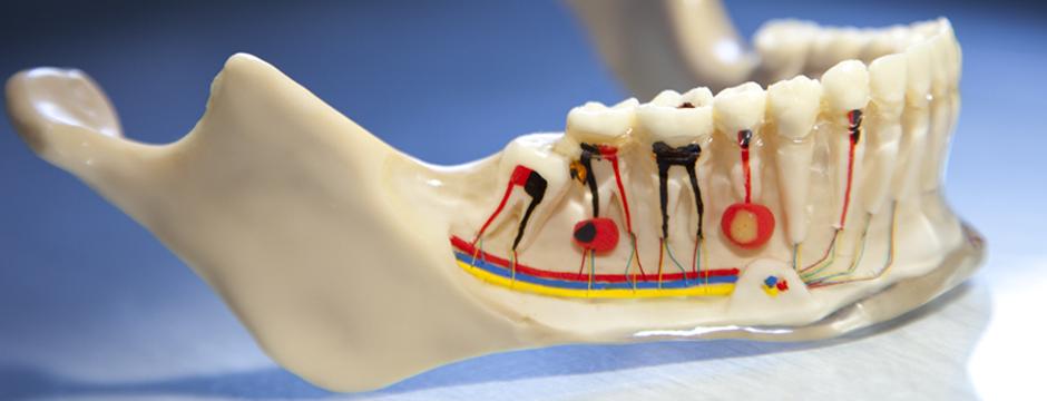 Dental Endo Laser Course ,Hands on exam