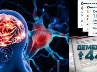 dt_160128_brain_neurons_800x600