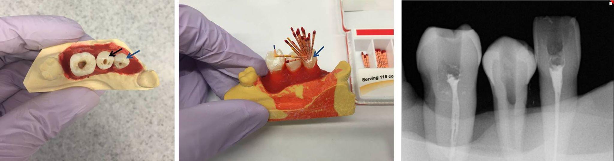 মডেলে extracted teeth এ RCT চর্চা করা।