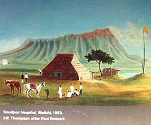 ১৮৫৩ সালে হাওয়াই তে গুটি বসন্ত নির্মূল হাসপাতাল