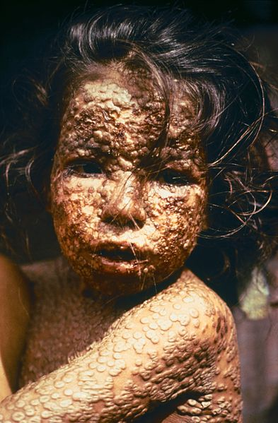 Small Pox Girl