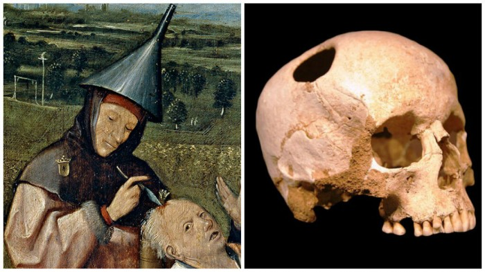 ancient-trepanation-1