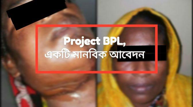 """বিনামূল্যে মুখের ক্যান্সারের চিকিৎসা পেলেন দরিদ্র রোগী : """"Project BPL"""""""